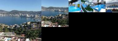 Brisa Diamante Acapulco